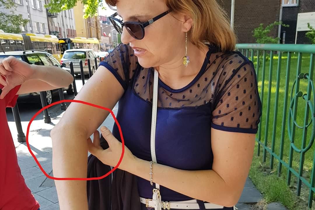 PiS-bandyci złamali rękę kobiecie i oskarżyli ofiarę